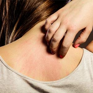 Dra. Gabriella Albuquerque fala sobre dermatite atópica