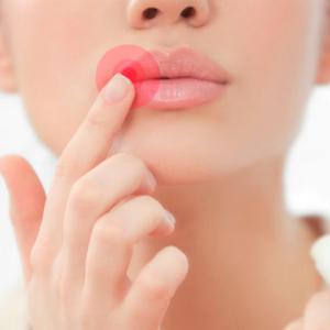Autoestima: Herpes não é motivo de vergonha, e você não deve deixar o lado psicológico te abalar nas eventuais manifestações da doença - Cuidados pela Vida