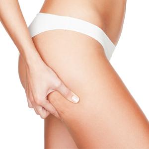 Celulite: causas e tratamentos