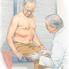 Saiba como prevenir a Herpes Zoster